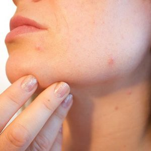 Dermatology Advice and Support