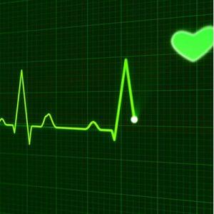 A cardiograph